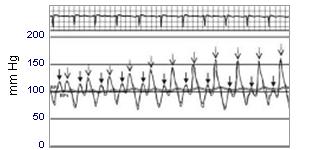 Hemodinamik2
